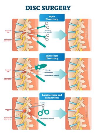 Disc surgery vector illustration. Medical labeled diagram with back pain from compressed spinal nerves. Open, endoscopic, laminectomy and laminotomy surgery exapmles.