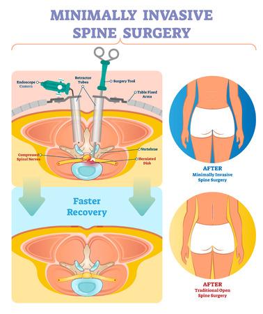 Minimaal invasieve wervelkolom chirurgie vectorillustratie. Gelabeld medisch diagram met endoscoopcamera, retractorbuizen, gereedschap, vaste tafelarmen en samengedrukte ruggenmergzenuwen.