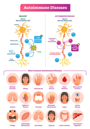 Ilustración de vector de enfermedades autoinmunes. Conjunto de colección de diversas enfermedades. Daño por estrés constante y explicación médica etiquetada. Fugas intestinales y razones de dieta paleo AIP.