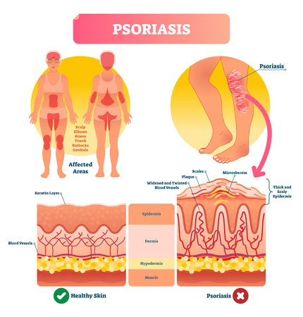 Psoriasis vector illustration. Skin disease and illness. Labeled structure with scales, plaque, widened and twisted blood vessels. Shown affected areas on human body.