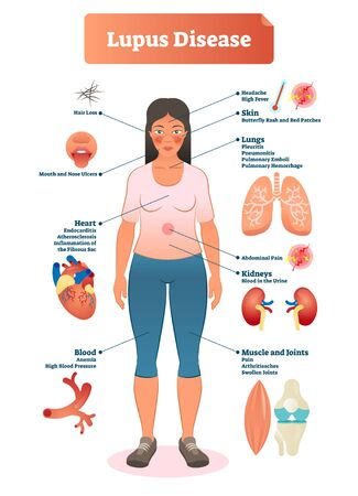 Lupus disease vector illustration. Labeled diagram with sickness symptoms, like hair loss, high blood pressure, muscle or joints pain and butterfly rash red patches.