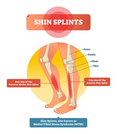 Shin splints vector illustratie. Beenspier sporttrauma en botpijn gelabeld diagram. Geïsoleerd dijbeen, patella, kuitbeen, scheenbeen en voetbeenderen met getoonde letsellocatie. Vector Illustratie