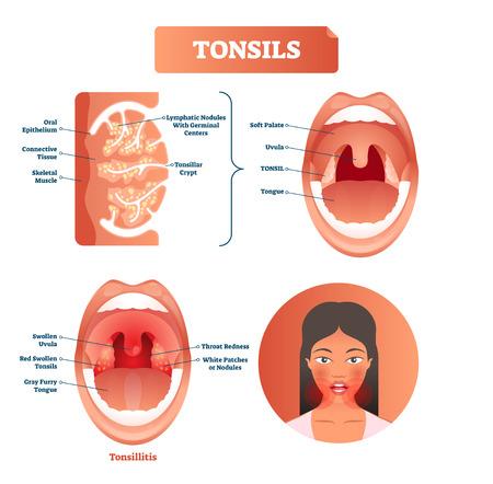 Ilustración de vector de amígdalas. Amigdalitis diagrama de estructura etiquetada con úvula inflamada, lengua peluda gris, enrojecimiento de la garganta y parches o nódulos blancos. Síntoma de desorden
