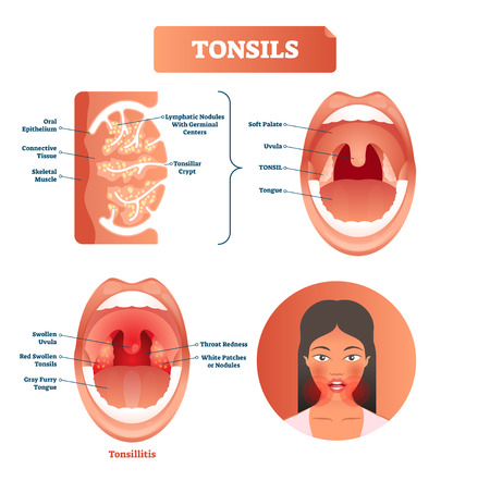 Tonsils vector illustration. Tonsillitis labeled structure diagram with swollen uvula, gray furry tongue, throat redness and white patches or nodules. Symptom of disorder
