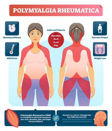 Polymyalgia rheumatica vector illustration. Labeled autoimmune diagnosis diagram. Medical and anatomical infographic with symptoms, problem zones and consequences. Fatigue reason.