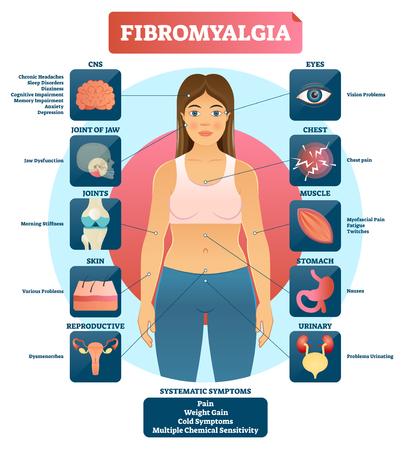 Ilustración de vector de fibromialgia. Diagrama etiquetado de síntomas de diagnóstico. Problemas de mandíbula, articulaciones, piel, músculos, ojos, sistema urinario y reproductivo. Razón de la fatiga. Ilustración de vector