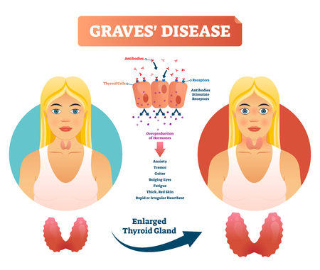Graves disease vector illustration. Labeled diagnosis symptoms diagram. Reason of autoimmune disorder with anxiety, tremor, fatigue and bulging eyes. Medical body problem