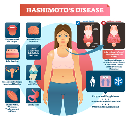 Hashimotos thyroiditis vector illustration. Labeled medical scheme with autoimmune disorder diagnosis and symptoms like tongue enlargement, pale, dry skin and stifness.