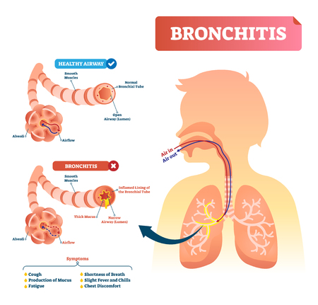 Bronchitis vector illustration. Lung disease diagnosis. Labeled medical diagram with healthy airway and illness. Pulmonary problem and symptoms like cough, fatigue, breath shortness, chills and fever. Illustration