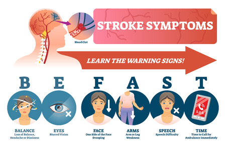 Stroke symptoms vector illustration. Warnings of sudden blood clot in head. Labeled list with reasons for health attention and ASAP ambulance. BE FAST scheme with isolated danger illness risk signs.