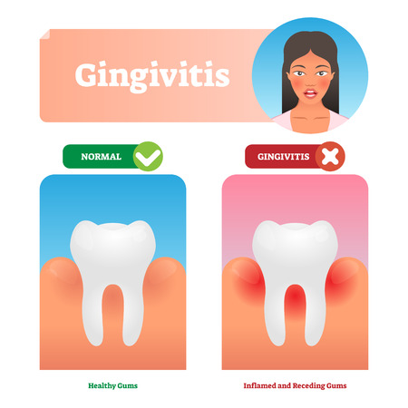Gingivitis vector illustration. Medical oral mouth illness symptoms example. Compared healthy and tooth with inflammation. Isolated anatomy disease diagnostics. State before periodontitis with biofilm Ilustração