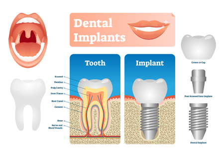 Dental implants vector illustration. Labeled medical scheme with tooth cap. Screwed post with crown compared with natural isolated example. Educational structural diagram with oral surgery technology.