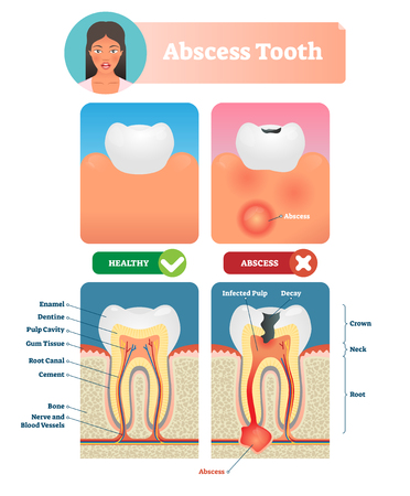 Abscess tooth vector illustration. Labeled medical diagram with structure. Compared isolated infected root canal with healthy. Personal oral mouth hygiene to prevent inflammation, cavity and pain.