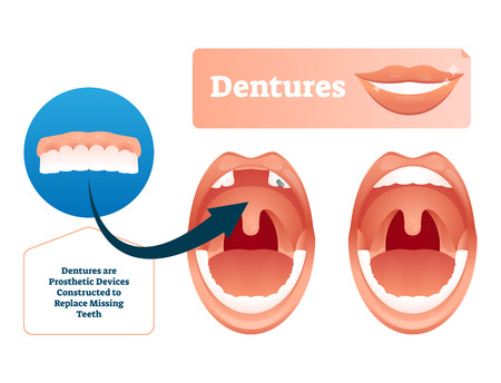 Dentures vector illustration. Medical prosthetic device for missing teeth. Human example with before and after tooth replacement technology concept. Closeup with oral mouth problem and extracted tooth Ilustrace