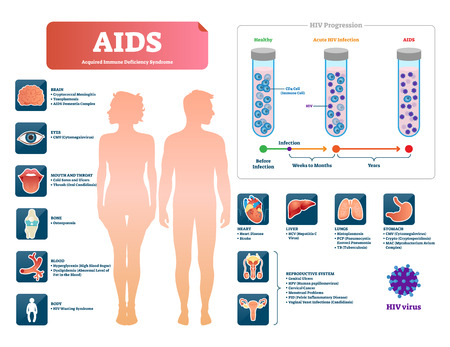 AIDS or HIV vector illustration. Labeled medical diagram with virus symptom. Educational infographic with patient immune deficiency syndrome diagnosis. Explanation of infection progression and stages.