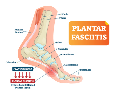 Plantar fasciitis vector illustration. Labeled human feet disorder diagram. Educational medical scheme with orthopedic leg disease. Painful plantar fascia bone inflammation and irritation infographic.  イラスト・ベクター素材