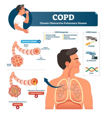 Illustration vectorielle de la MPOC. Explication de la maladie pulmonaire obstructive chronique étiquetée. Diagramme des symptômes et des causes de l'inflammation des poumons. Comparaison des voies respiratoires saines et de la maladie de type emphysème ou bronchite. Vecteurs