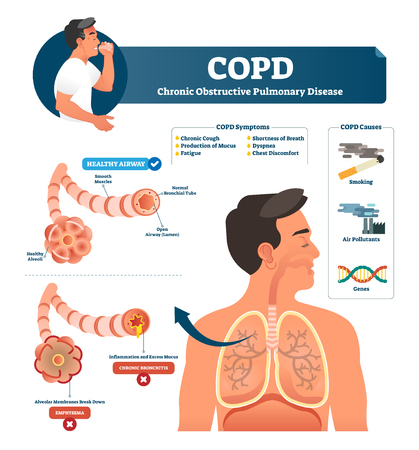 COPD vector illustration. Labeled chronic obstructive pulmonary disease explanation. Lungs inflammation symptoms and causes diagram. Compared healthy airways and emphysema or bronchitis type sickness.