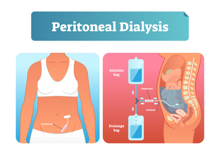 Peritoneal dialysis vector illustration. Labeled scheme with method to exchange fluids after surgery. Isolated internal catheter system explanation diagram. Medical kidney failure solution infographic