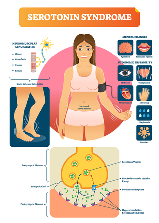 Serotonin syndrome vector illustration with medical labeled symptoms scheme. Educational diagram with neuron closeup and anatomical disease explanation. Condition after drugs or medications overdose. Illustration
