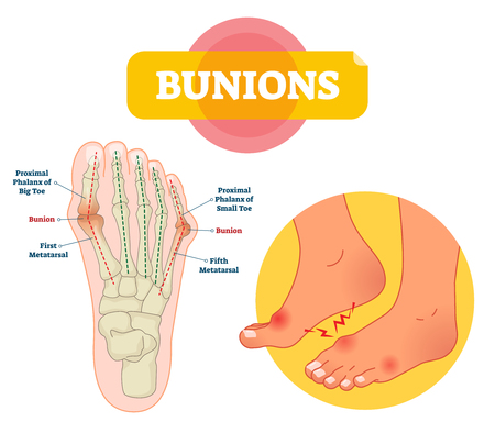 Bunions vector illustration. Labeled feet bone disorder explanation scheme. Painful toe joint condition. Orthopedics inflammation problem with deformity. Medical barefoot xray infographic diagram. 向量圖像