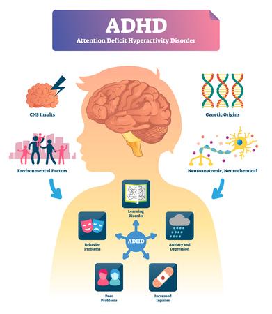 Illustration vectorielle de TDAH. Schéma de trouble déficitaire de l'attention avec hyperactivité étiqueté. Exemples avec symptômes et causes. Explication du comportement stressant. Infographie médicale avec la maladie de concentration de l'esprit. Vecteurs