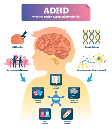ADHD vector illustration. Labeled attention deficit hyperactivity disorder scheme. Examples with symptoms and causes. Stressful behavior explanation. Medical infographic with mind focusing illness. Illustration