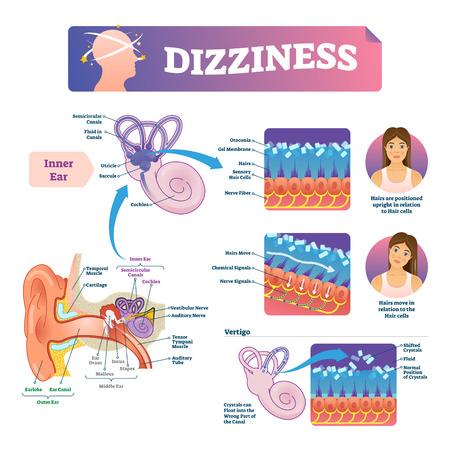 Dizziness vector illustration. Labeled medical scheme with inner ear and vertigo. Educational closeup diagram with rotating and unstable head feeling cause. Anatomical vestibular problem explanation.