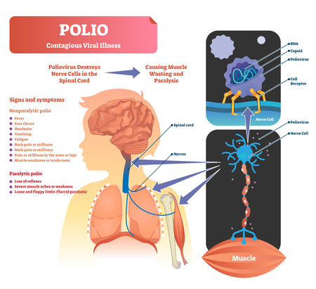 Polio vector illustration. Labeled medical virus infection symptoms explanation scheme. Closeup process how inhaled disease affects muscles. Health danger diagnosis that causes paralysis and pathology Vector Illustratie