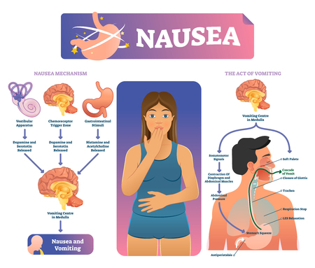 Nausea vector illustration. Labeled medical vomiting explanation scheme. Anatomical infographic with inner organs reaction to trigger bad stomach feeling. Poisoning problem and puke signal act diagram
