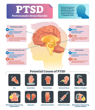 PTSD vector illustration. Labeled anatomical mental disorder causes scheme. Compared healthy and problematic brain differences set. Explained psychiatry diagnosis after disasters, abuse and accidents. Illustration