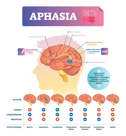 Illustration vectorielle de l'aphasie. Programme éducatif étiqueté avec trouble des neurones du cerveau. Problème médical avec incapacité d'écriture, de lecture et de répétition. Liste avec l'emplacement de la maladie, sa structure et ses effets.
