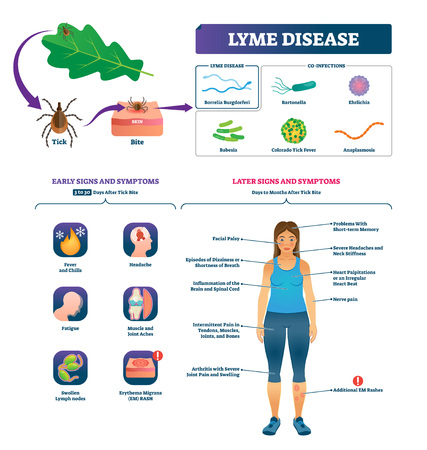 Lyme disease vector illustration. Labeled tick bite infection symptoms scheme. Educational collection with co-infections closeup and early or later signs. Vaccination to prevent epidemic diagnosis. Иллюстрация