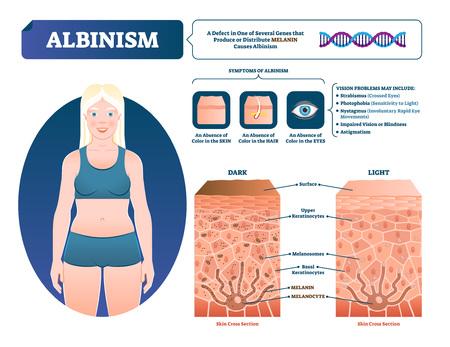 Ilustración de vector de albinismo. Esquema de pérdida de pigmento de melanina médica etiquetado. Problema genético con síntomas de piel, ojos, cejas y color de cabello. Se comparó la sección transversal de piel normal con la falta de melanocitos. Ilustración de vector