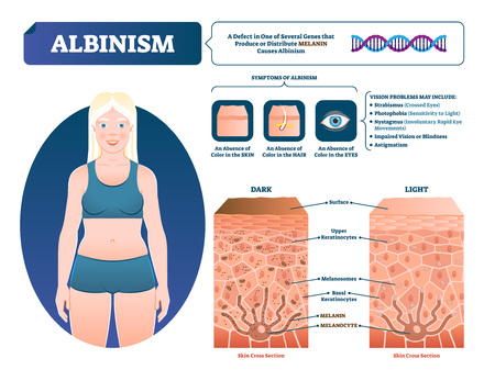 Albinism vector illustration. Labeled medical melanin pigment loss scheme. Genetic problem with skin, eyes, eyebrows and hair color symptoms. Compared normal skin cross section with lack of melanocyte Illustration