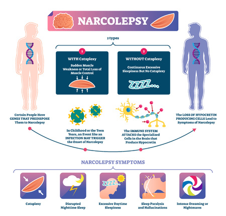 Narcolepsy vector illustration. Labeled muscle strength disease infographic. Medical sleep loss explanation scheme with cataplexy types. Anatomical symptom list and immune system brain attack diagram.