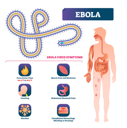 Ebola vector illustration. Labeled virus bacteria infection symptoms scheme. Anatomical infographic with isolated epidemic microorganism that cause death, illness, disease and dangerous viral outbreak Illustration