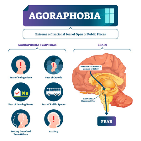 Agoraphobia vector illustration. Labeled anatomical fear explanation scheme. Emotional mental process with unreasonable irrational awareness from open public places. Psychological illness symptoms.