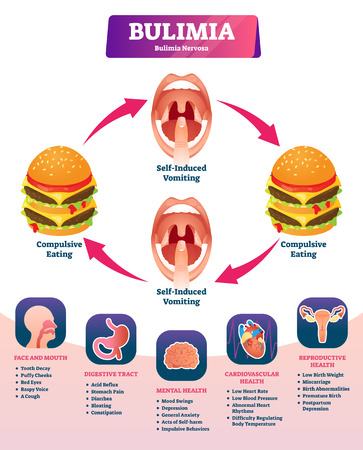 Bulimia vector illustration. Labeled self induced vomiting diagnosis scheme. Medical explanation with obesity to be slim symptoms. Eating disorder and psychological problem. Starvation addiction cycle