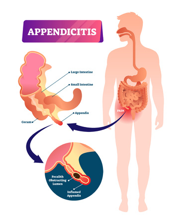 Appendicitis vector illustration. Labeled appendix inflammation scheme. Anatomical closeup diagram with intestine, cecum and lumen. Stomach pain explanation and acute digestive system tract problem.