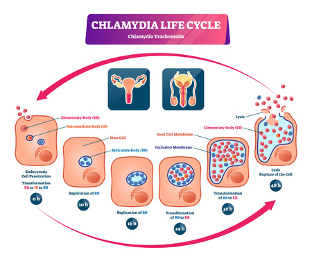 Chlamydia life cycle vector illustration. Labeled STI infection development diagram. Sexually transmitted medical problem scheme. Microbiological educational structure with cells, membrane and lysis. Illustration