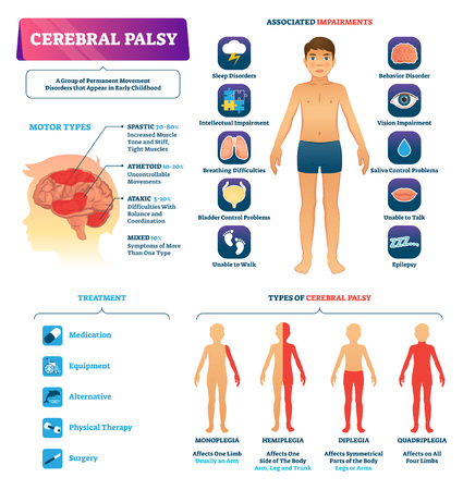 Cerebral palsy vector illustration. Labeled permanent movement disorder type scheme. Medical educational diagram with motor types, associated impairments and treatment. Special needs childhood problem