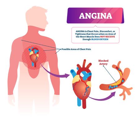 협심증 벡터 일러스트 레이 션. 레이블이 붙은 의료 흉통 및 심장 문제 계획. 압력이 있는 교육용 해부학적 건강 질병. 산소 부족으로 인한 답답한 압박감.