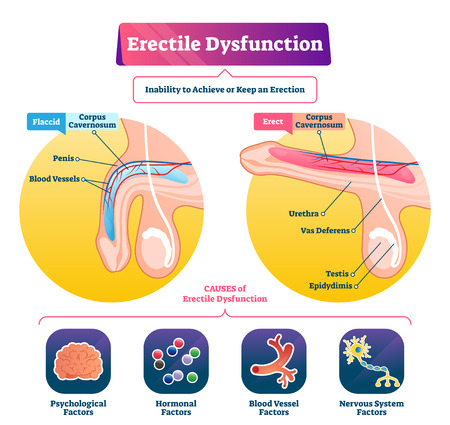 Erectile dysfunction vector illustration. Labeled impotence explain scheme. Medical illness with sexual male issues. Fertility potency problem and flaccid penis disorder. Corpus cavernosum lift state. 일러스트