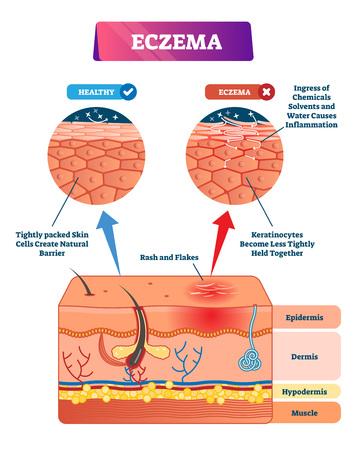 Illustrazione vettoriale di eczema. Schema comparativo struttura anatomica etichettato. Infografica educativa con strati di sezioni trasversali. Sintomi, cause e spiegazione del rossore. Diagramma del primo piano dell'epidermide malata