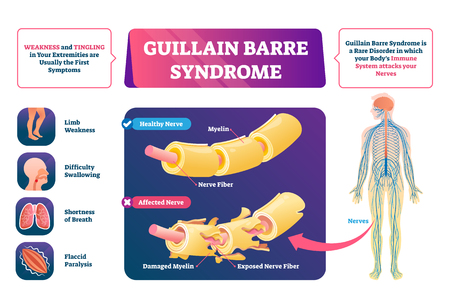 Guillain Barre syndrome vector illustration. Labeled nerve disease scheme. Autoimmune illness with muscle weakness and tingling symptoms. Educational anatomical healthy and affected closeup structure.