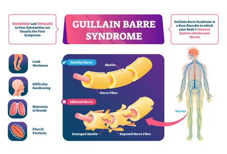 Illustration vectorielle du syndrome de Guillain Barre. Schéma des maladies nerveuses étiquetées. Maladie auto-immune avec faiblesse musculaire et symptômes de picotements. Structure agrandie anatomique saine et affectée éducative.