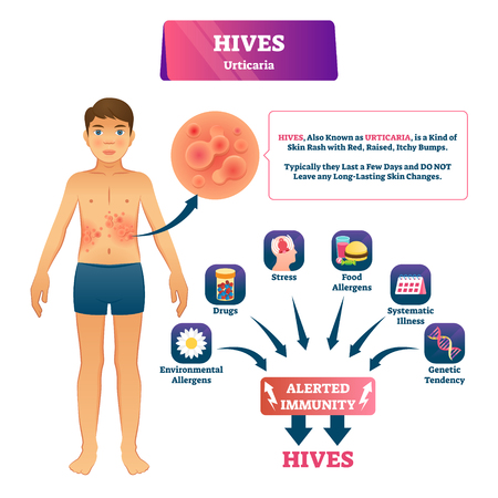 Hives urticaria vector illustration. Labeled skin rash explanation scheme. Skin problem with red rash, raised, itchy bumps. Alerted immunity symptoms and causes diagnosis. Epidermis illness reaction. Stock Illustratie