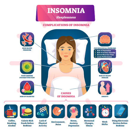 Insomnia vector illustration. labeled sleeplessness symptoms, causes scheme. Anxiety, tired and exhaustion disorder problems. Education diagram with psychological complications and anatomical fatigue.