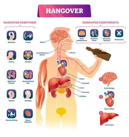 Hangover vector illustration. Labeled alcohol sickness explanation scheme. Medical booze overdose symptoms and components diagram. Ethanol drink health poisoning problem and inner organs infographic. Ilustrace